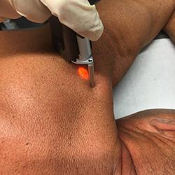 epilation laser marseille